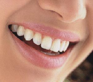 Menghilangkan Karang Gigi Dengan Tradisional